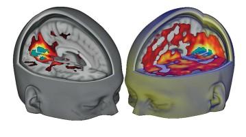 המחקר שעשה מהפכה בהבנה של השפעות ה LSD על המוח