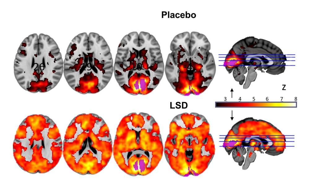 השפעות LSD על המוח